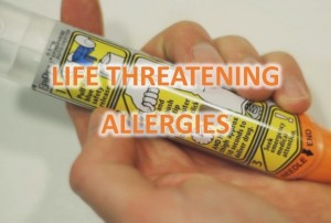 Life threatening allergies icon
